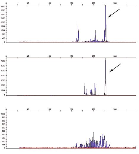 Выявление моноклональности по генам TCRγ
